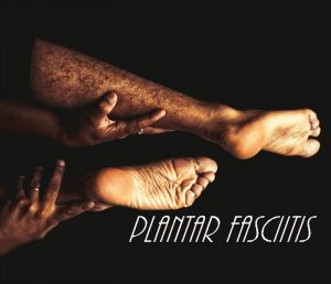 Plantar Fasciitis during Half Marathon Training